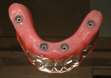las vegas dentures